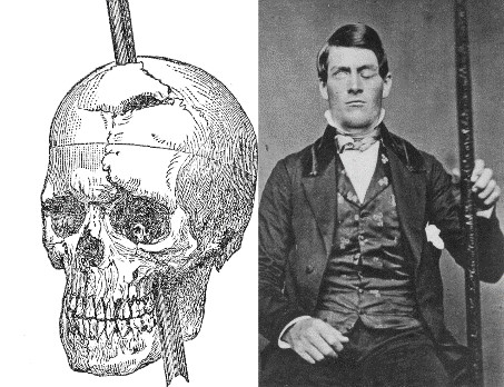 Phineas Gage image
